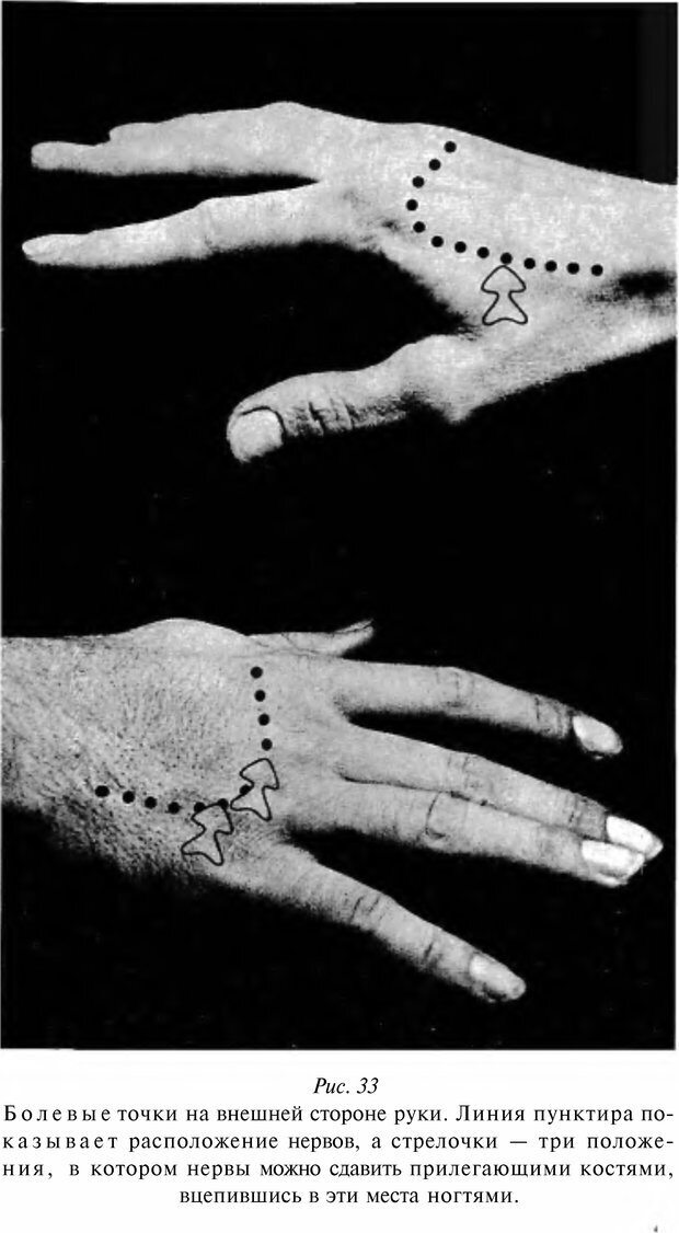 DJVU. Чёрная медицина: Тёмное искусство смерти, или как выжить в мире насилия. Маширо Н. Страница 130. Читать онлайн