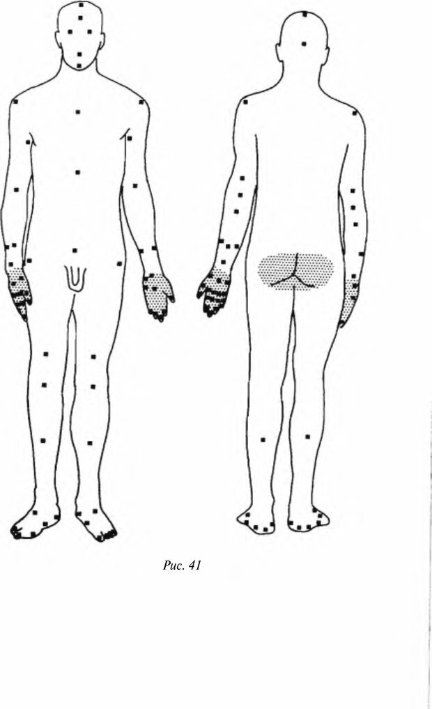 DJVU. Чёрная медицина: Тёмное искусство смерти, или как выжить в мире насилия. Маширо Н. Страница 140. Читать онлайн